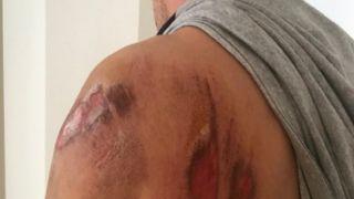 Агринио: Собака атаковала полицейского