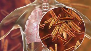 24 марта - международный День борьбы с туберкулезом