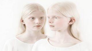 Из-за пандемии в мире возросло количество убийств альбиносов