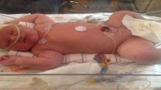Израиль: у новорожденной девочки в животе оказался... эмбрион